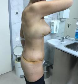 История пациентки Ирины. Как сбросить 50 кг  лишнего веса и добиться идеального тела 18
