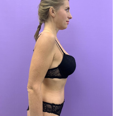 История пациентки Ирины. Как сбросить 50 кг  лишнего веса и добиться идеального тела 34