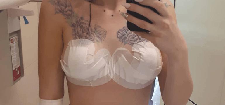 Пластика тубулярной груди 10