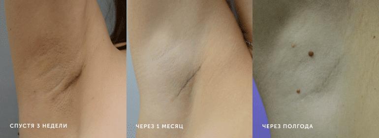 Увеличение груди 216