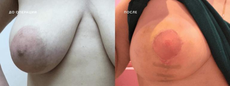Уменьшение груди 2